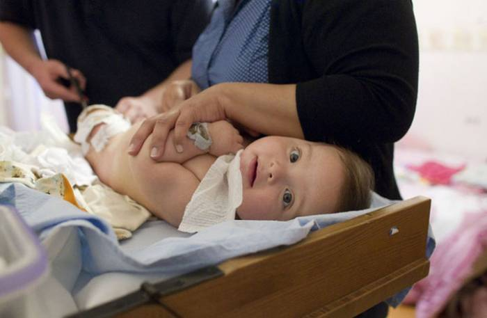 Έγκαυμα σε μωρό