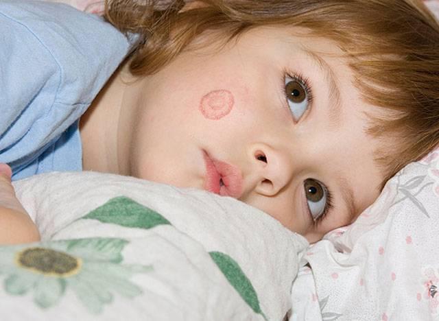 Δερματοφυτία στα μωρά