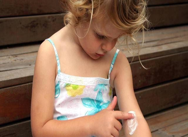 Ξηροδερμία σε παιδί