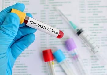 hepatitiis