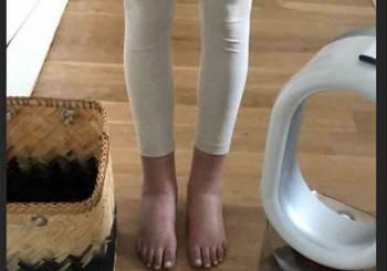 πρησμένα πόδια