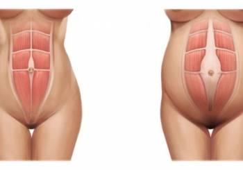 Επίπεδο στομάχι μετά την εγκυμοσύνη
