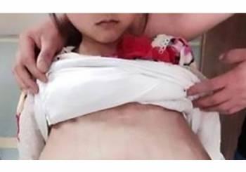 Κίνα: 40χρονος πήγε 12χρονη έγκυο στο νοσοκομείο λέγοντας πως είναι η 20χρονη σύζυγός του