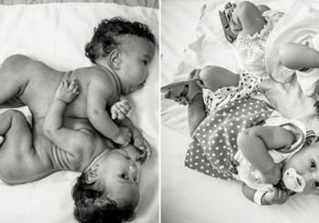 Σιαμαία δίδυμα μωρά λίγες μόλις ημέρες μετά την εγχείρηση διαχωρισμού